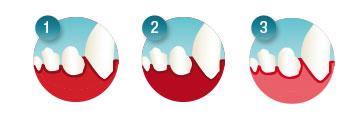 Zahnfleischentzündung erkennen